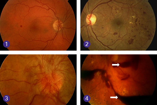 diabetic_retinopathy_stages_of_development