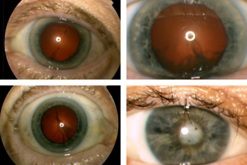 stages_of_cataract_development