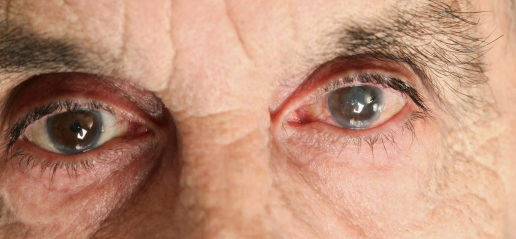man_with_cataract