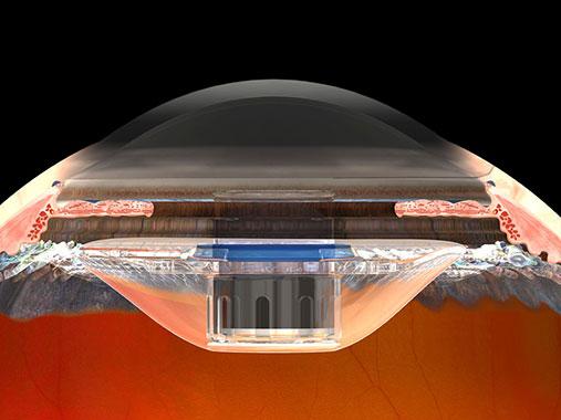 telescope_implant_construction