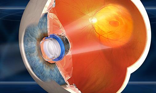 telescope_implant_technology